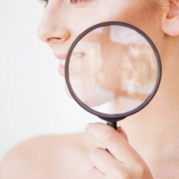 ACNE: DIAGNOSING AND TREATING THE RIGHT FORM OF ACNE YOU HAVE