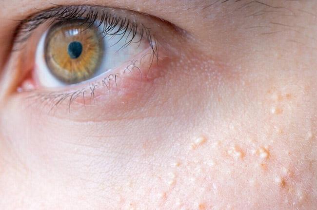 Milia skin condition